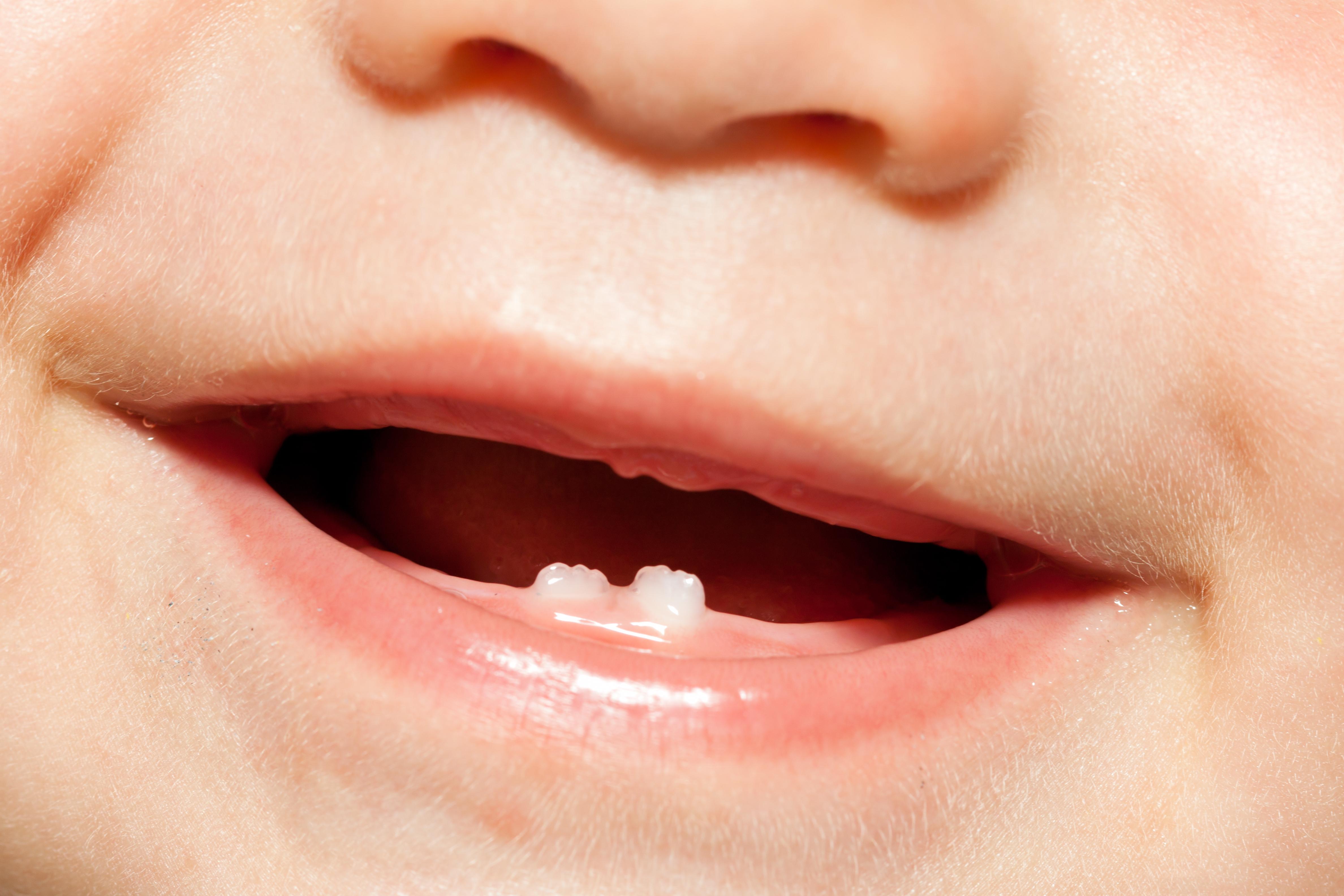 Фото детей 2 зуба